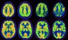 , Olio d'oliva, nuovi dati sui meccanismi molecolari che prevengono l'Alzheimer