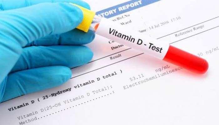 , Vitamina D, può essere utile nella prevenzione dell'Alzheimer?