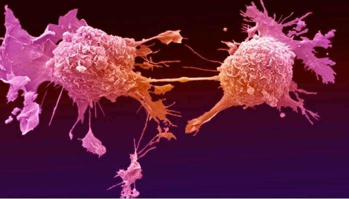 , Carcinoma mammario, trastuzumab riduce il rischio di recidiva