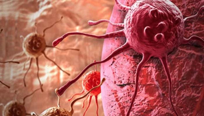 , La malnutrizione nel paziente oncologico va riconosciuta fin dai primi sintomi