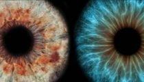 , Degenerazione maculare senile, testati gli effetti dei nutraceutici
