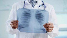 Polmoni-dottore