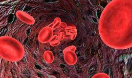 Trombo Sangue