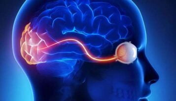 Glaucoma Cervello